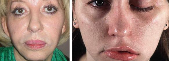 фото до ботокса и после