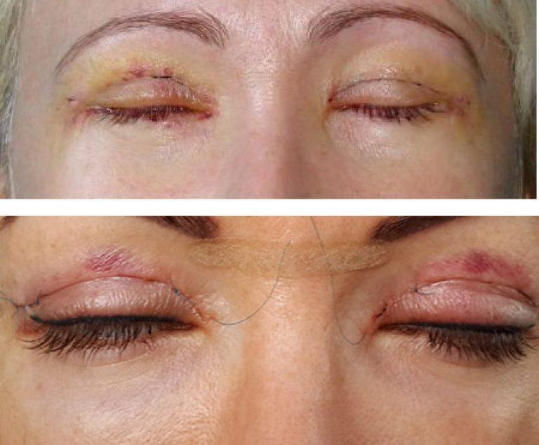 Синяки под глазами после блефаропластики