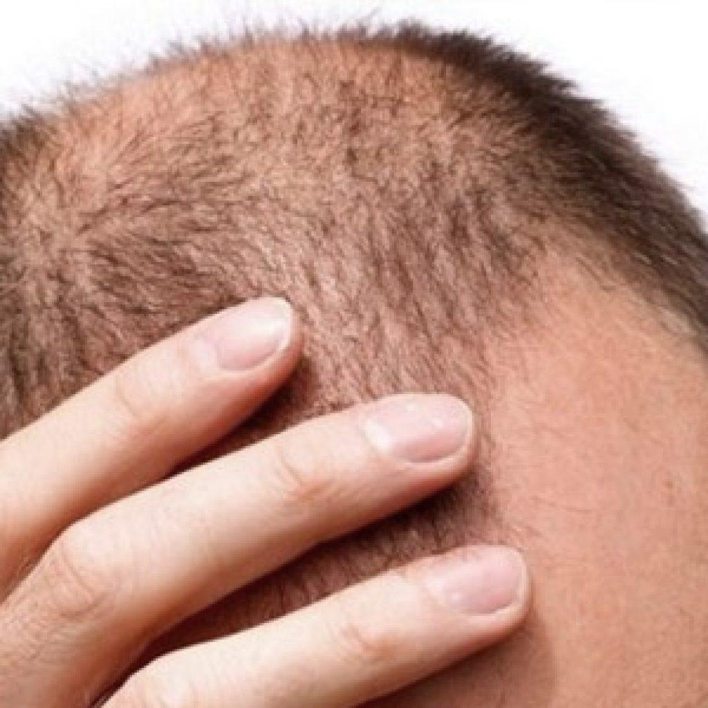 Диффузное выпадение волос - что это такое