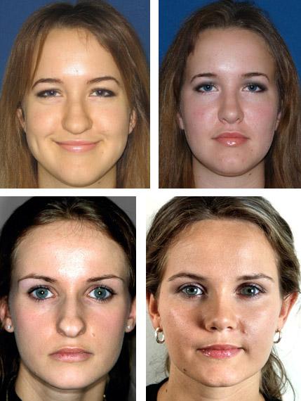 Пластика кончика носа фото до и после