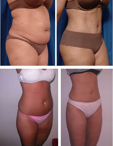 липосакция. фото до и после