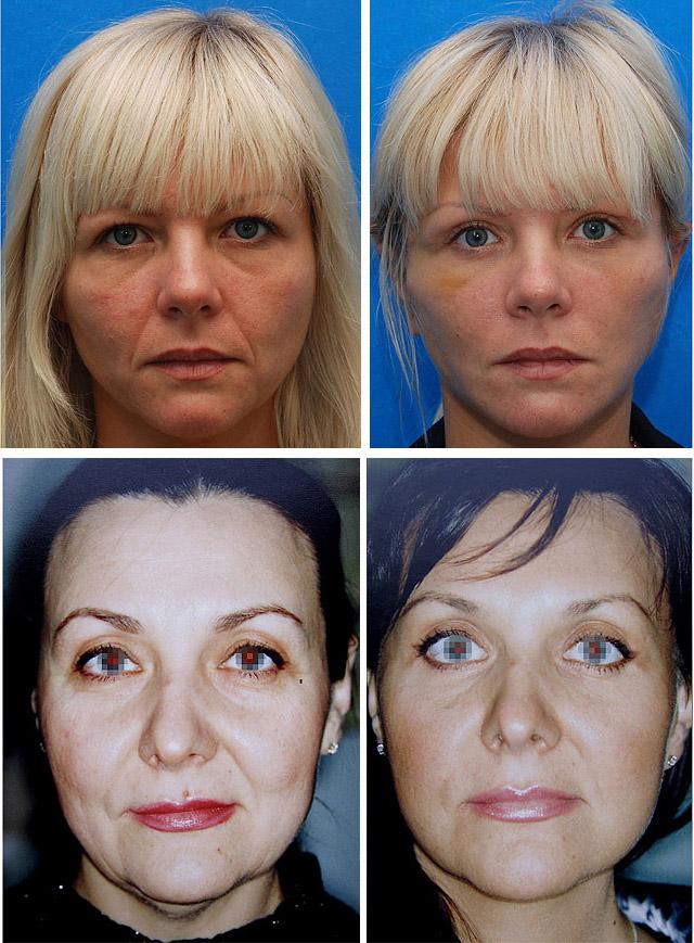 Фото до и после процедуры липосакции