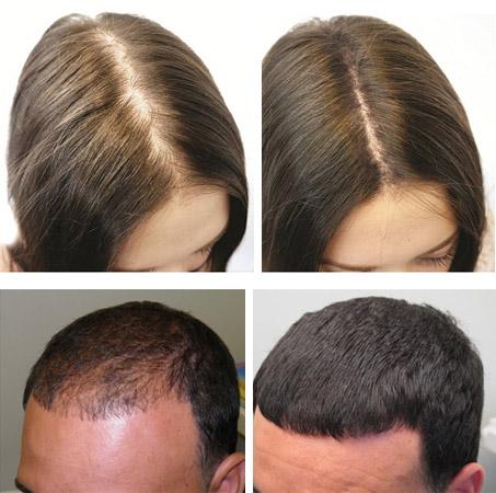 До и после терапии Димексидом
