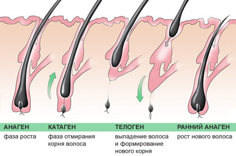 Как сделать так чтобы волосы на ногах выпали