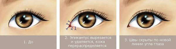 Коррекция формы глаз