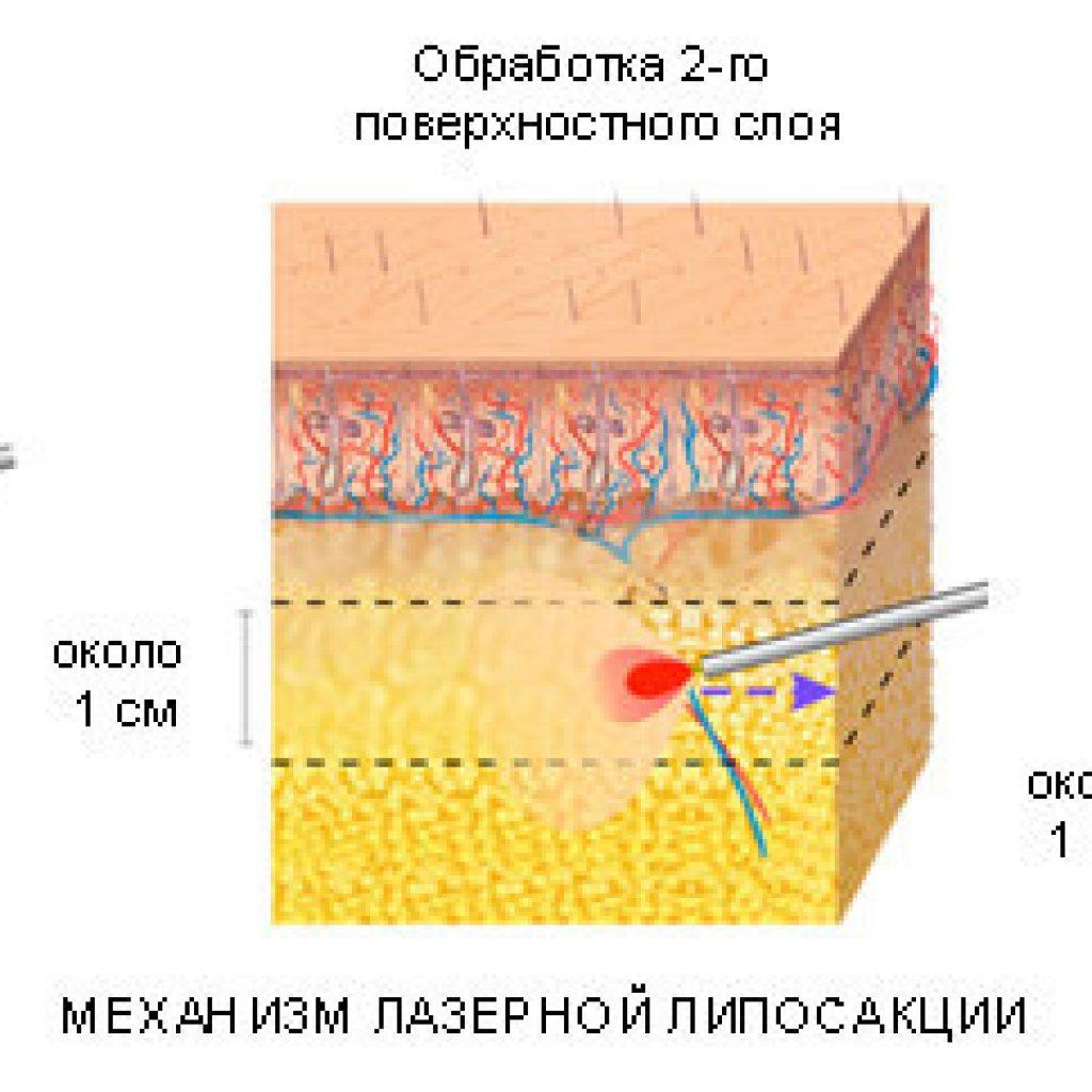 Механизм лазерной коррекции