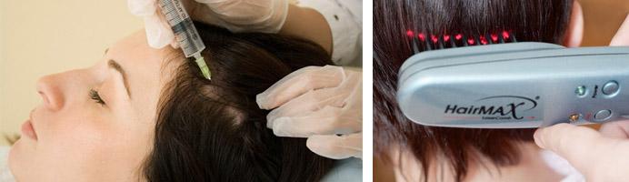 Озоно- и лазеротерапия волос