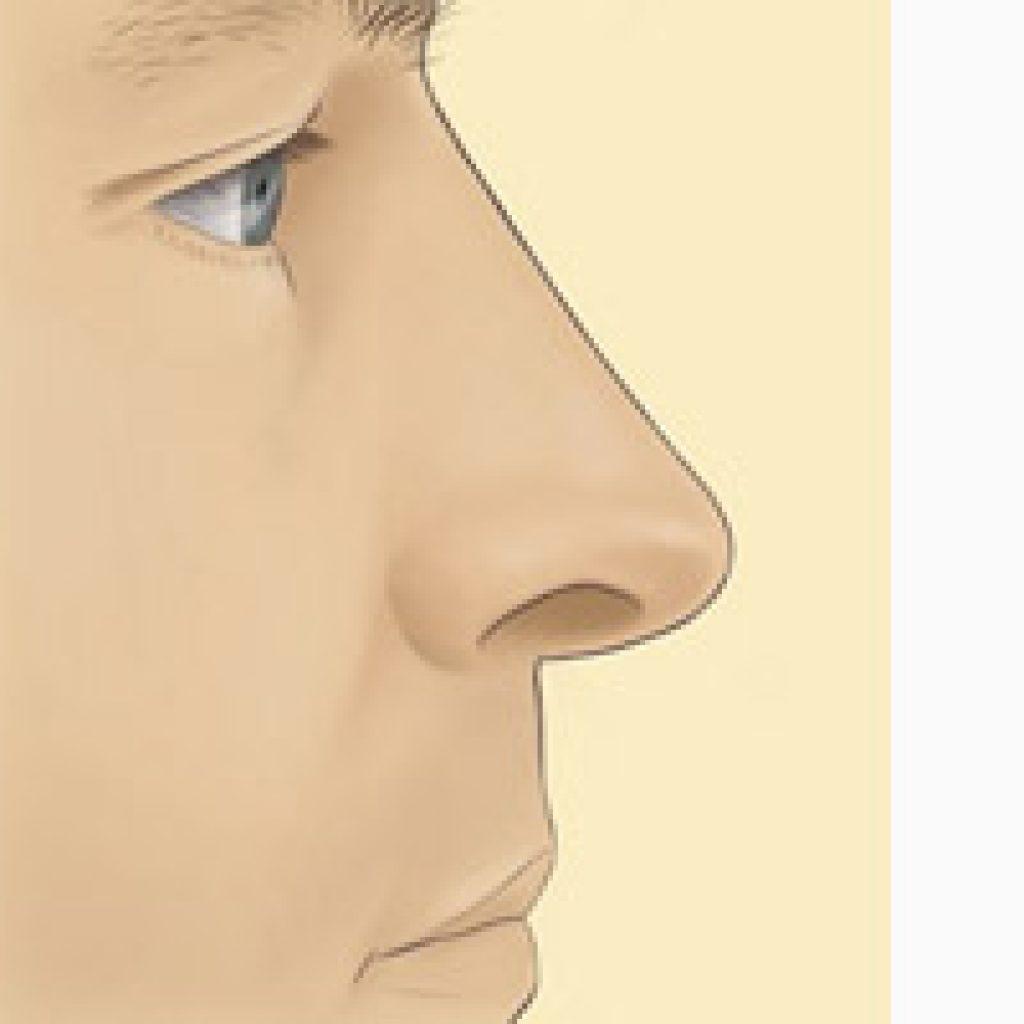 Пластика в области носа