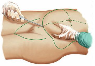 Подтяжка при помощи эндоскопа