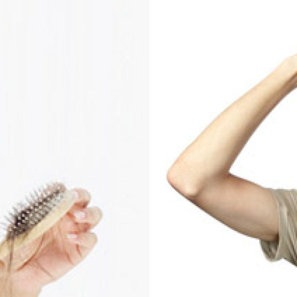 Почему выпадает много волос