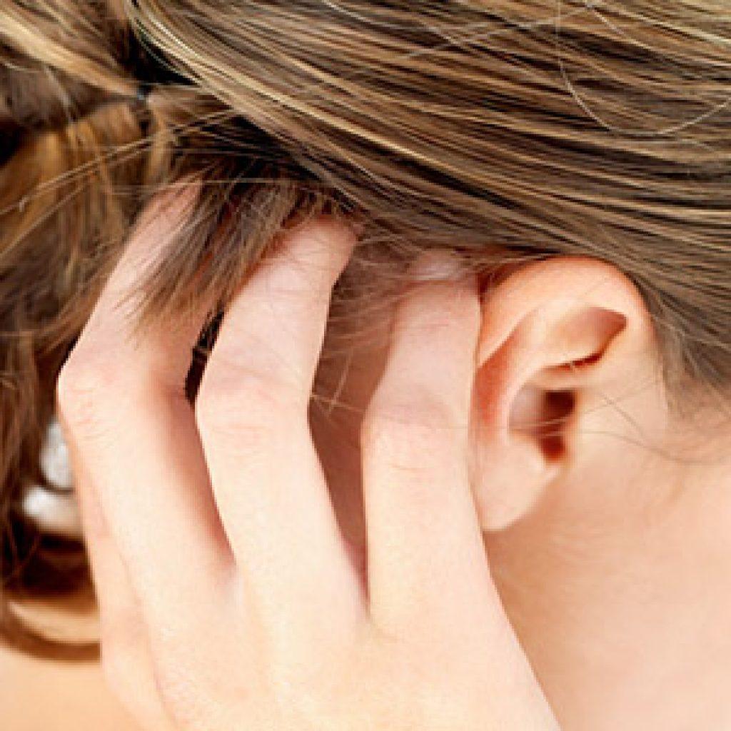 Причины возникновения перхоти на голове