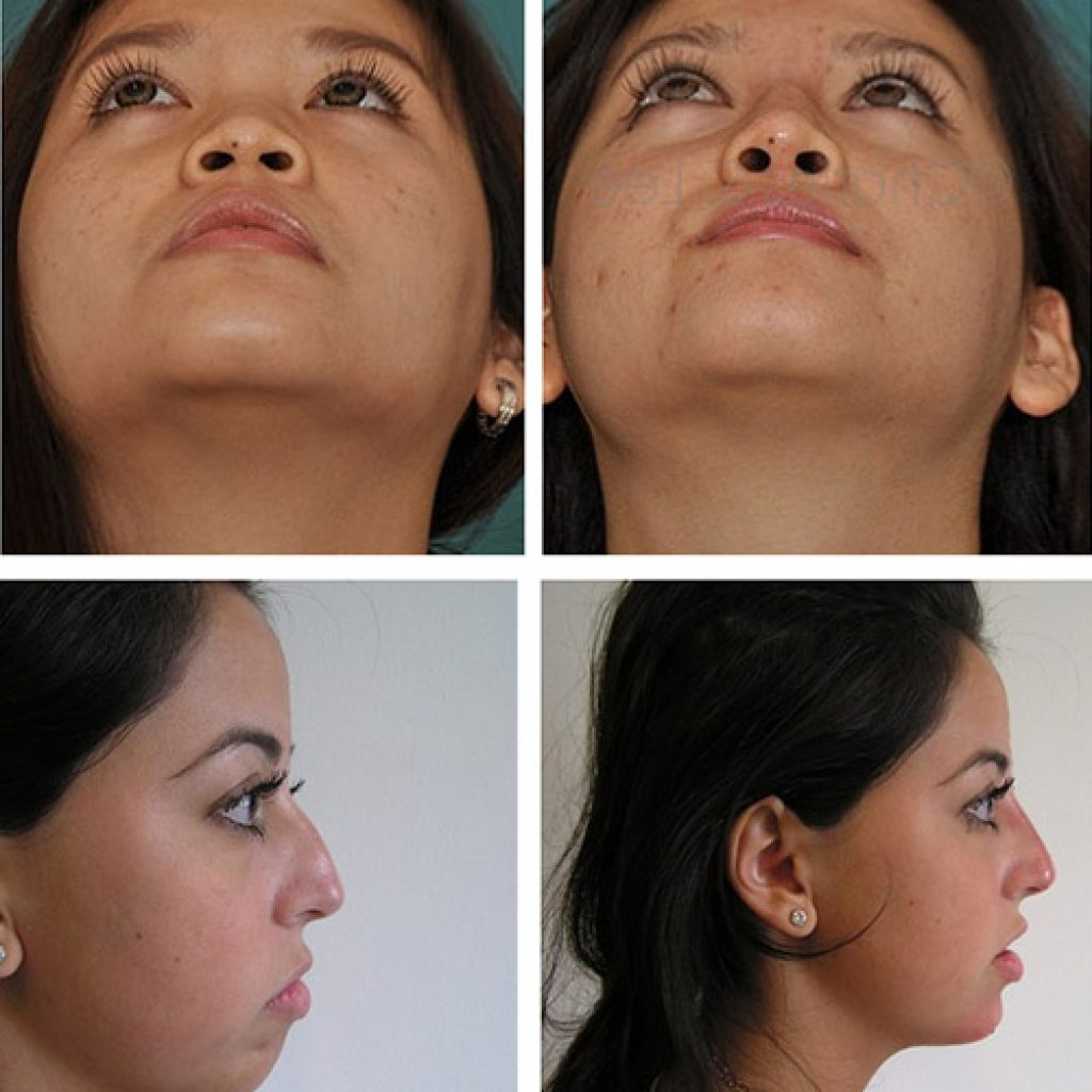 Процедура по исправлению формы носа