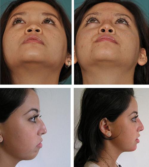 На фото результаты после коррекции формы носа