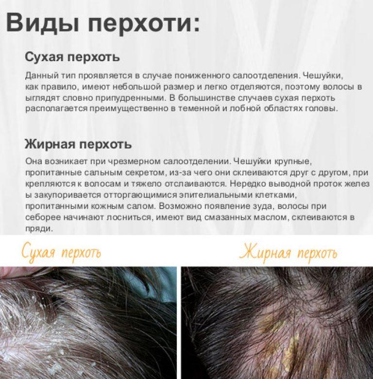 Лечение головы от перхоти в домашних условиях