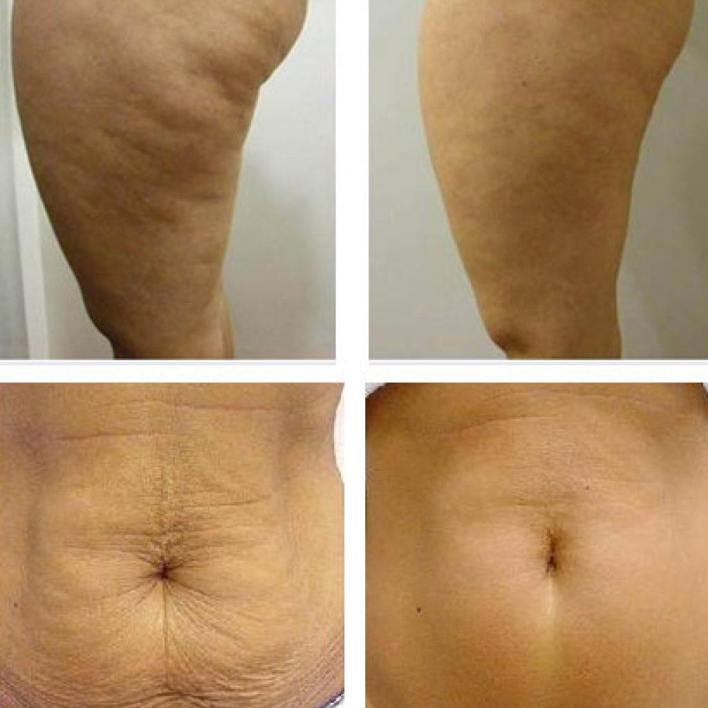 Удаление жира и подтяжка кожи