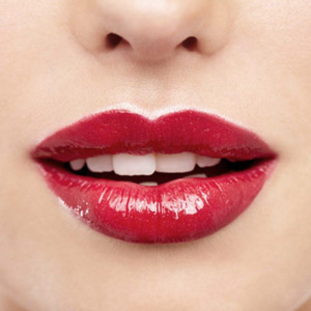 Хейлопластика губ - что это такое