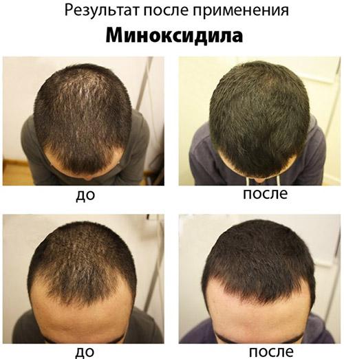 Эффективность лечения Миноксидилом