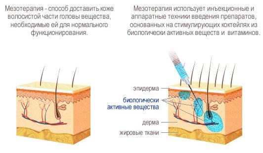 Введение инъекций