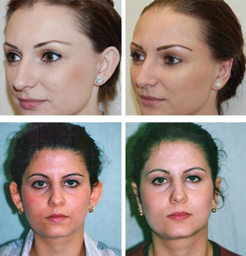 До и после коррекции ушной раковины