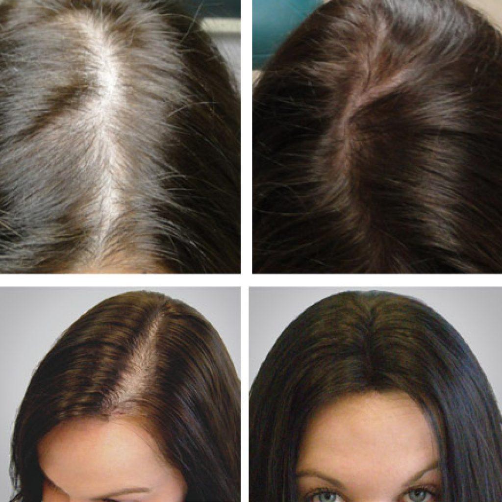 До и после курса лечения
