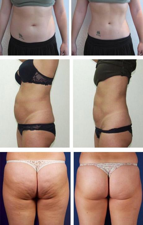 До и после липосакции тела
