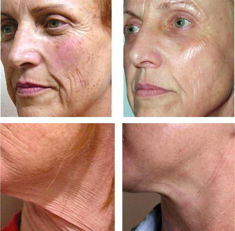 До и после мезотерапии