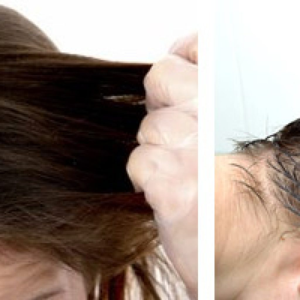 Заболевания кожи головы