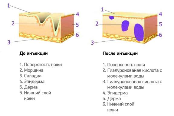 Инъекции мезококтейлей