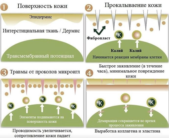 Как действует игольчатая мезотерапия