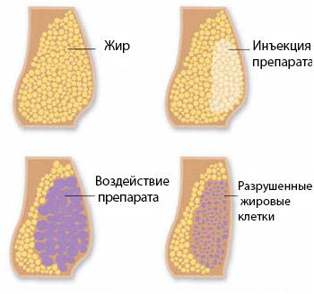 Как действуют мезоинъекции