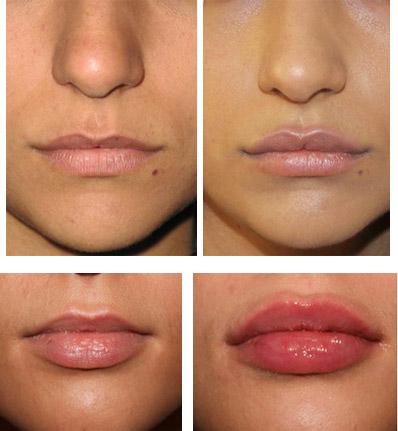 Коррекция области губ