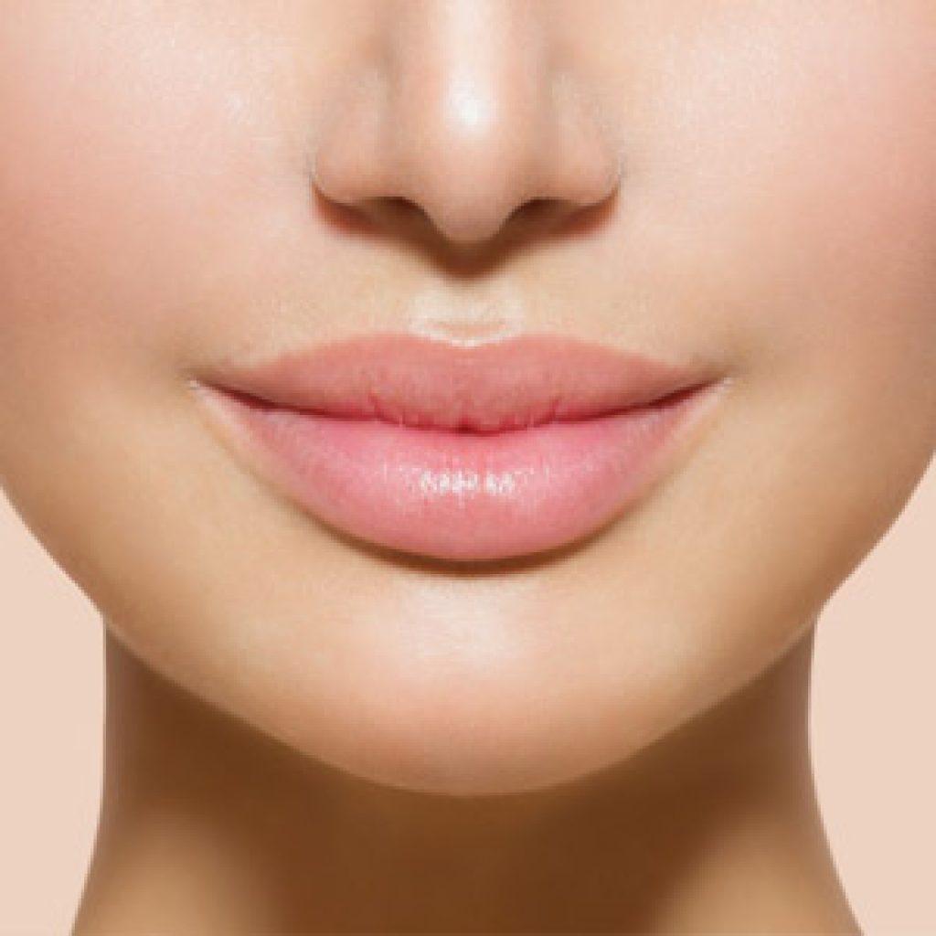 Коррекция формы губ при помощи липофилинга