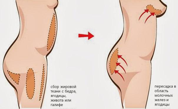 Липофилинг в области груди