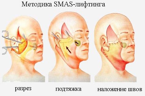 Методика SMAS-лифтинга