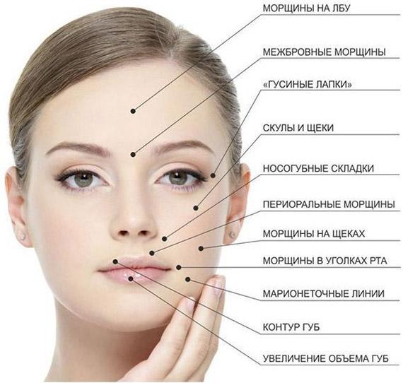 Область использования Botox
