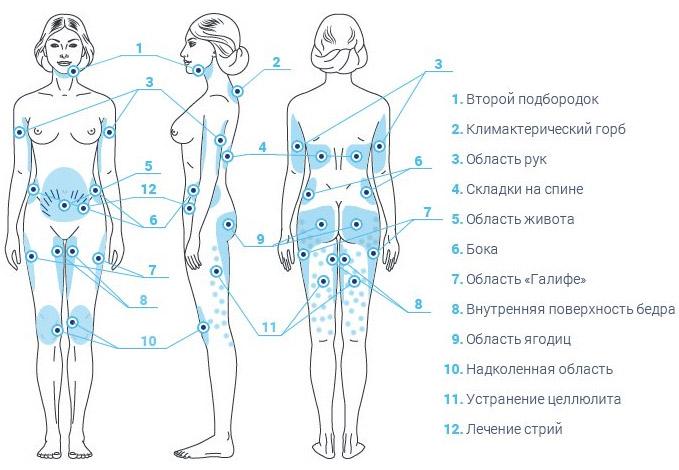Озонотерапия для коррекции фигуры