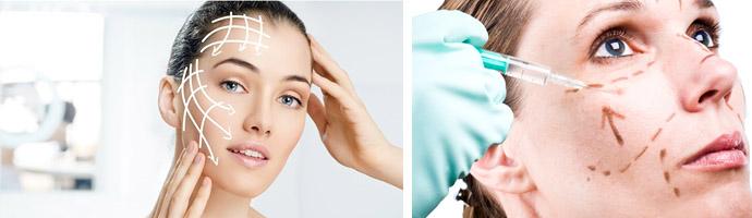 Омоложение кожи при помощи инъекций
