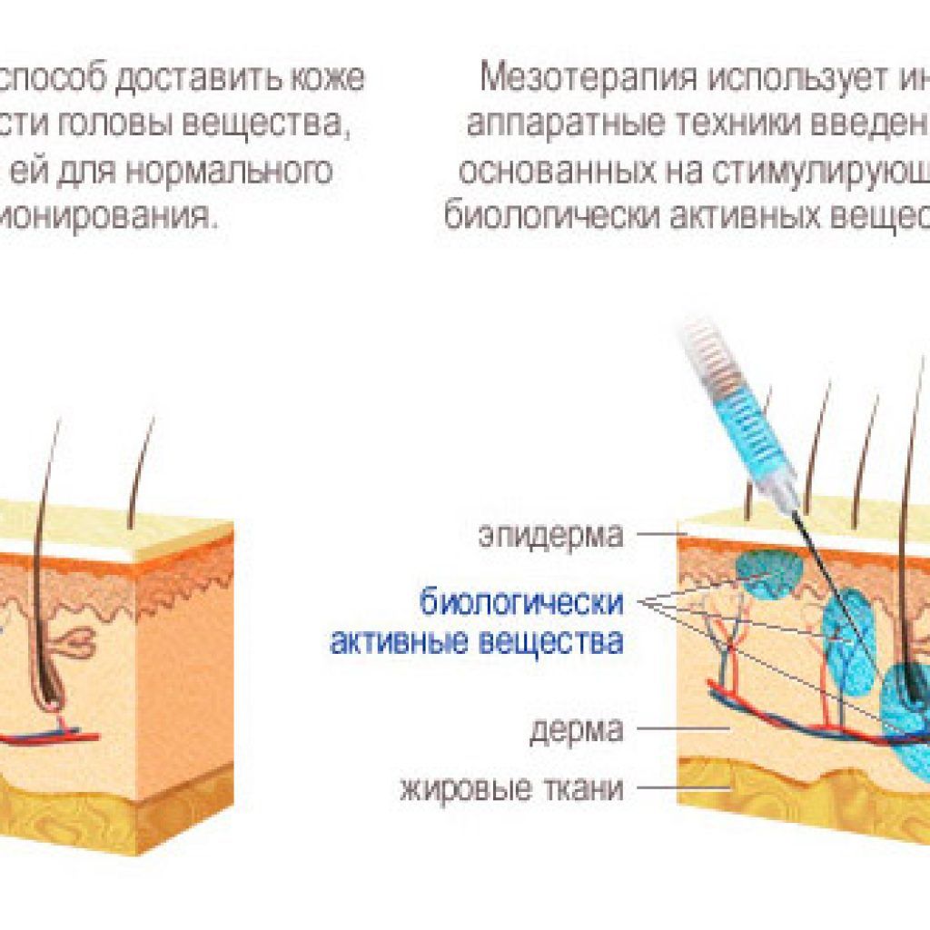 Описание процедуры
