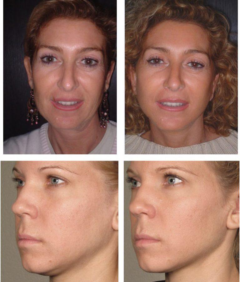 мезотерапия лица фото до и после отзывы рук движения
