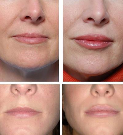 После введения Botox