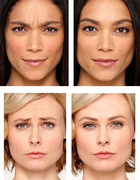 После инъекций Botox
