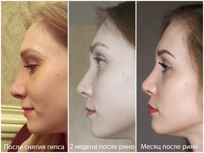После пластики носа