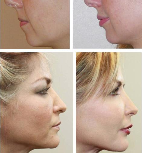 После процедуры коррекции губ