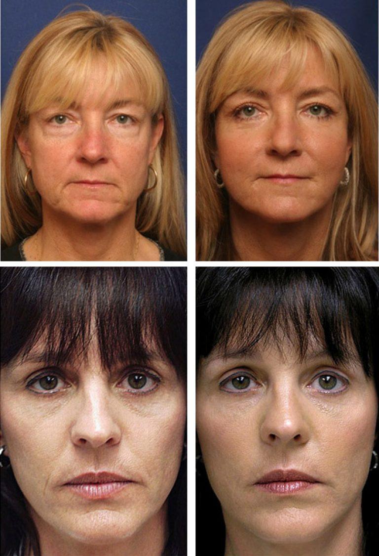 биоармирование лица фото до и после тоже люблю разборные