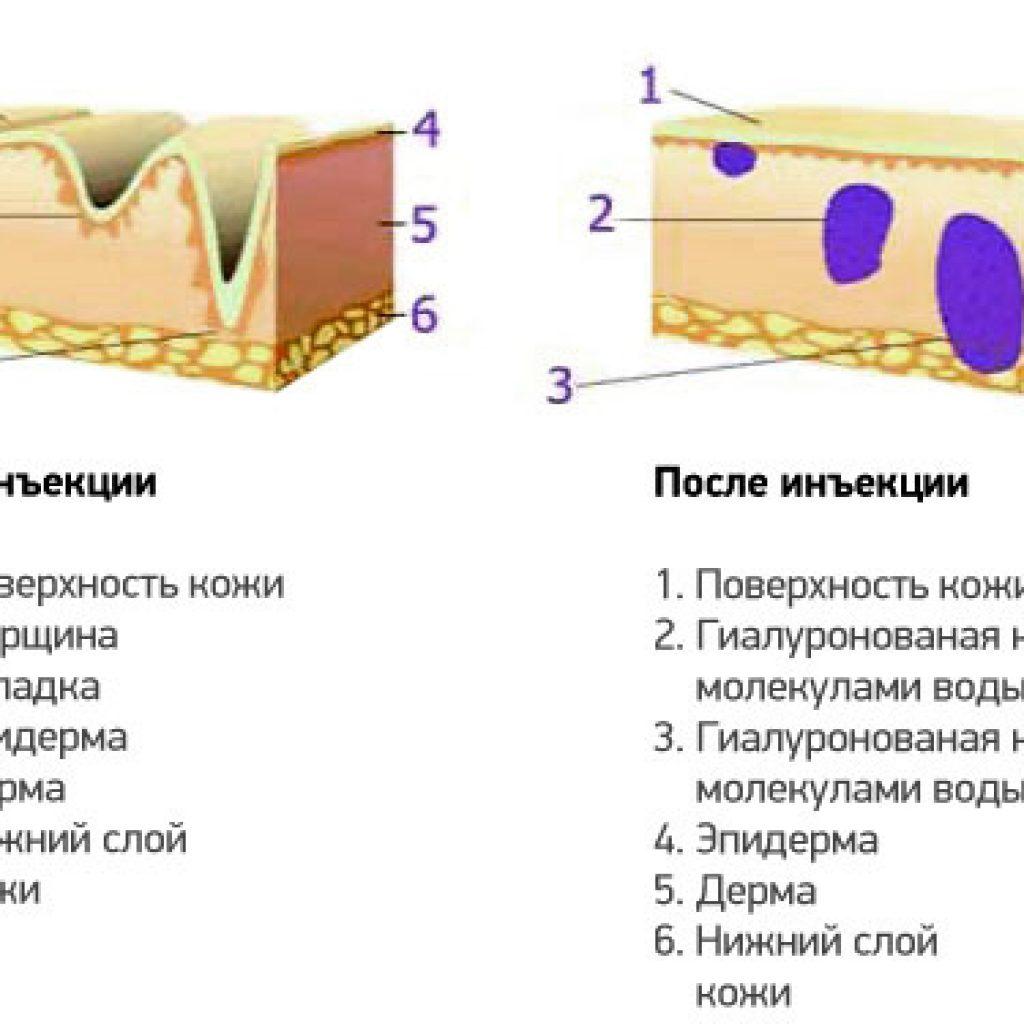 Преимущества мезотерапии