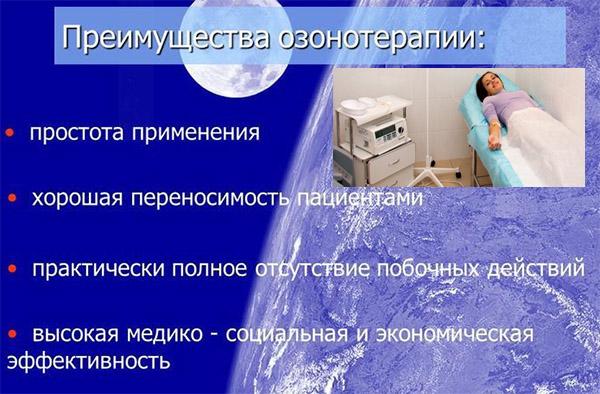 Преимущества процедуры