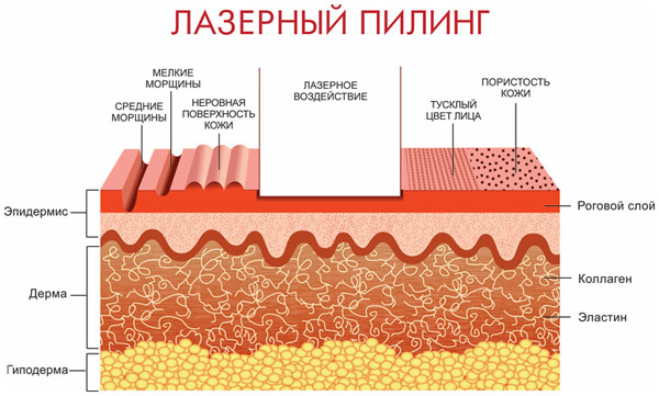Принцип действия лазерного пилинга
