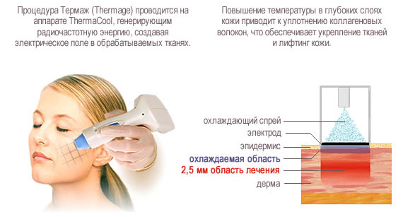 Процедура термолифтинг