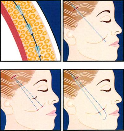 Процесс подтяжки кожи