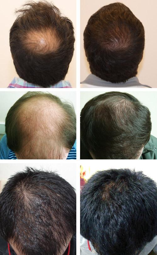 Настойка перцовая для роста волос отзывы фото до и после